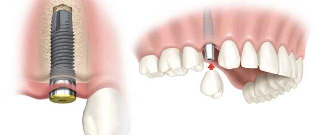 especialidade odontológica