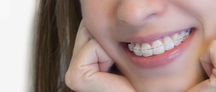dentes incisivos conoides