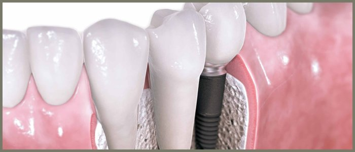 protesis_dental.jpg