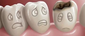 caries-estetica-dental-700x300.jpg