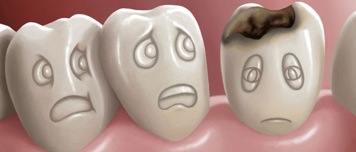 caries-estetica-dental-700x300.jpg