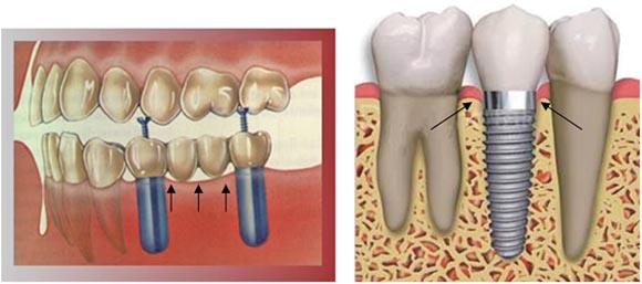 higienizando-protese-dentaria-cor