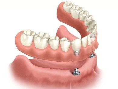 prótese-dentária-sobredentadura-overdenture