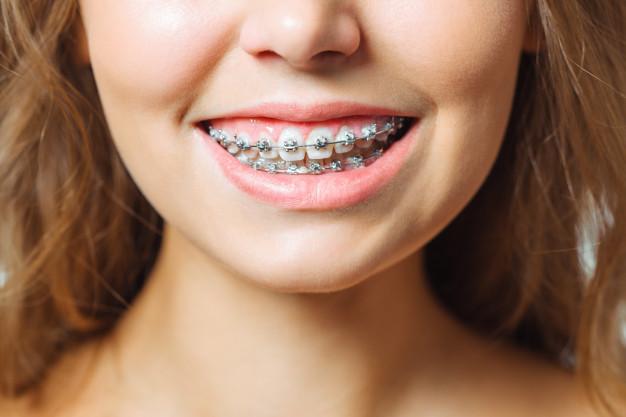 Aparelho odontologico funciona?