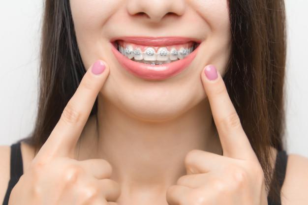 Como o aparelho odontológico funciona?